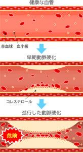 動脈硬化説明図